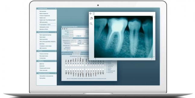 Программа для управления Стоматологией и заказа расходников
